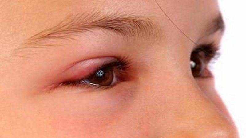 Отек глаза: причины и способы лечения отечности - смотреть видео (видео)